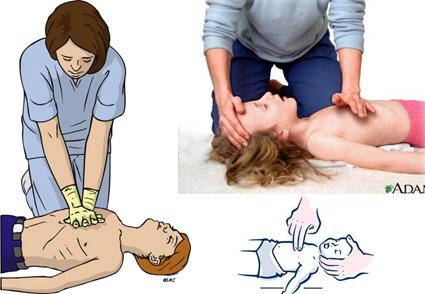 photo:  resuscitation-guidelines.articleinmotion.com -  www.mybwmc.org - www.firstaid.ph