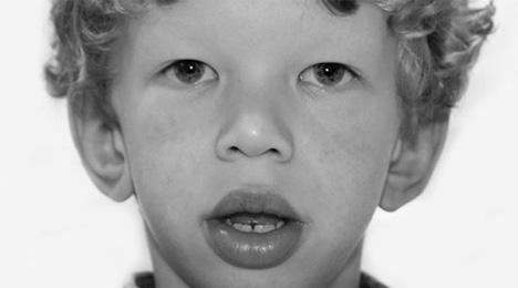 Τα χαρακτηριστικά του προσώπου ενός παιδιού με το σύνδρομο